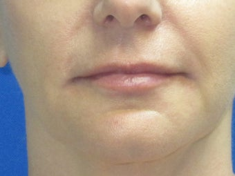 Juvederm chin and lip enhancement after 582251