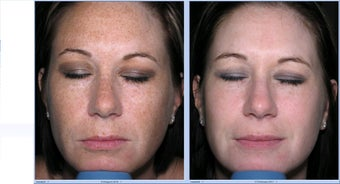 Limelight Ipl Treatment of the face before 315579