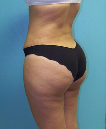Brazilian Butt Lift- Fat Transfer after 372638
