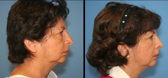 revision rhinoplasty before 433801