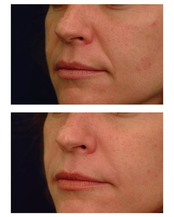 Juvederm before 82771