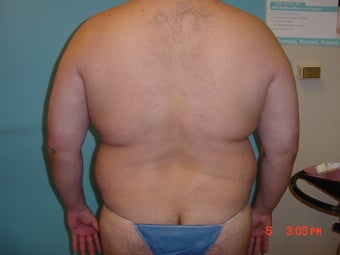 liposuction 309948
