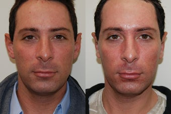 Otoplasty Surgery. 1 week post-op before 174240