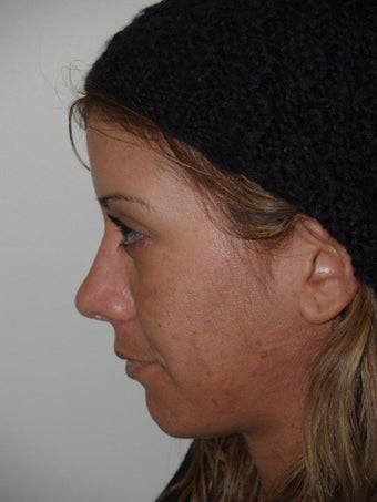 Revision Rhinoplasty after 481039