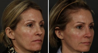 Revision Rhinoplasty and Sculptra before 314259
