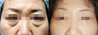 Lower Eyelid(Blepharoplasty) Surgery  before 650632