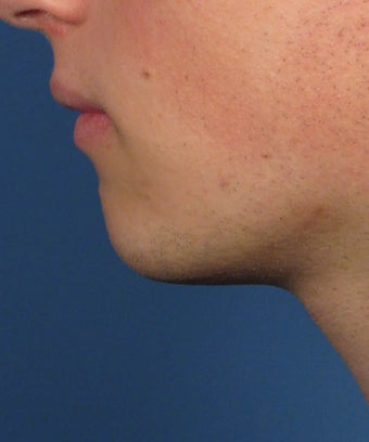 Chin Implant before 414150