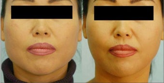 Botox Jaw Reduction before 136831