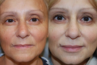 Non-Surgical Facial Rejuvenation and Lip Augmentation with Silikon-1000 before 244701
