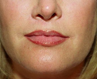 Lip lift, corner of lip lift, and filler in lips after 299913