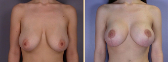 Mastopexy, Breast Lift before 270055