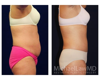 Tummy Tuck with Liposuction 391605