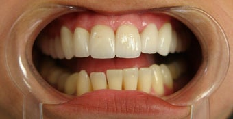 porcelain veneers before 359222