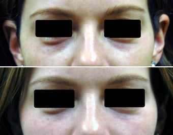 Filling of under-eye hollows / tear troughs with hyaluronic acid filler before 258109