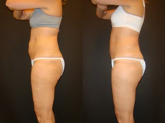 CoolSculpting before 576268