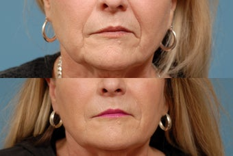 Sculptra before 409299