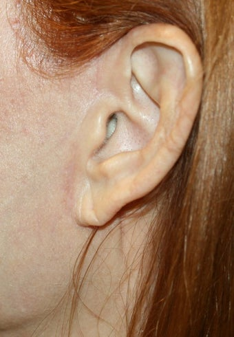 Earlobe filler before 393288