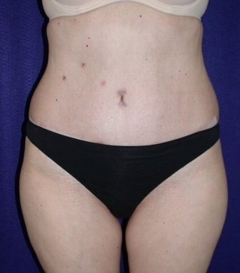 Tummy Tuck (abdominoplasty) after 208465