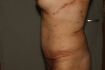 Abdominoplasty-Tummy Tuck with Liposuction after 607275