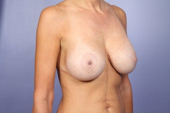 Breast Lift / Breast Augmentation  after 291051