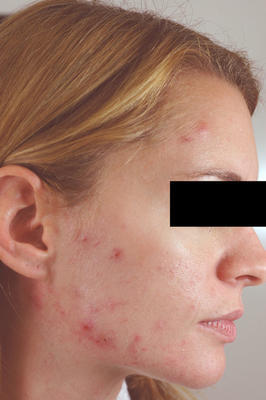 Laser Acne Treatment before 82977
