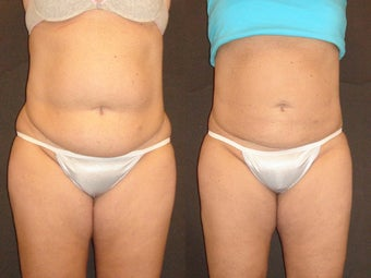 SmartLipo before 96258