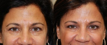 BOTOX Cosmetic: 3 areas before 130671