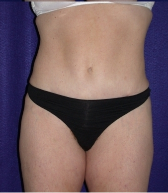 Tummy Tuck (abdominoplasty) after 208482