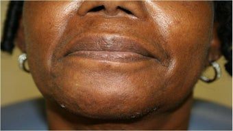 Lip augmentation with Juvederm before 302912