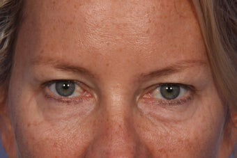 Restylane to Tear Trough (under eyes) before 308308