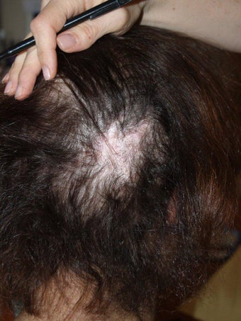 Hair Transplant to Prior Scar after 331296