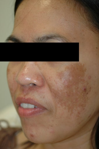 Melasma Treatment Before and After Photos before 641757