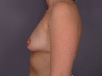 Circumareolar Breast Lift with Breast Implants before 309739