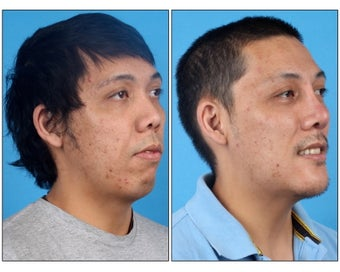 Asian Rhinoplasty and Genioplasty before 331135