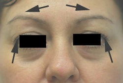 Botox Brow Lift before 179154