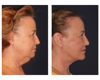 Lower Face and Neck Lift before 355122