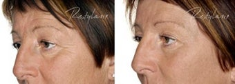 Before and after Restylane on fine lines before 6272