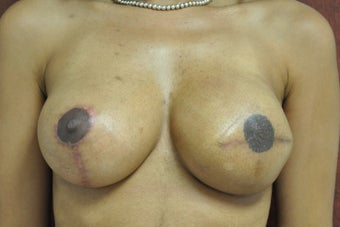 Left Breast Reconstruction after 302941