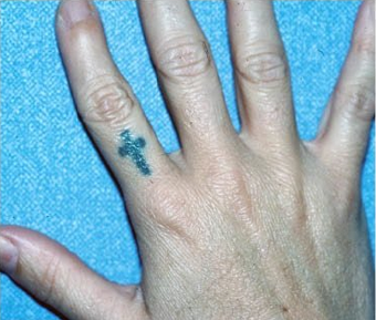 QSR Ruby Laser Tattoo Removal before 329673