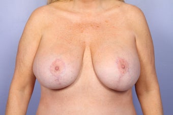 Breast Lift and Implants  after 302593