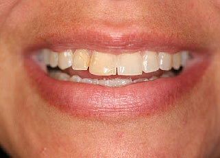 Smile makeover with Lumineers and Invisalign before 109373