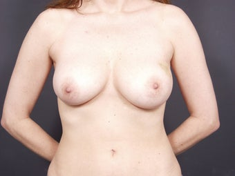 38 Year Old for Breast Reconstruction before 643170