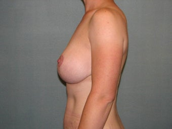 breast lift with augmentation 403874