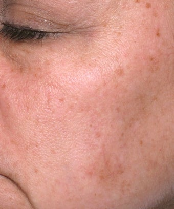 Melanage Peel to Treat Melasma and Hyperpigmentation after 302116