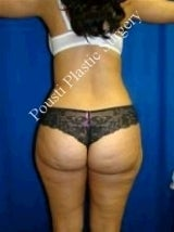 Liposuction 607922