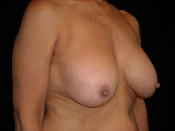 58 year old lady wanted implant removal and a breast lift 631743