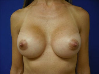 Breast Implants after 137925