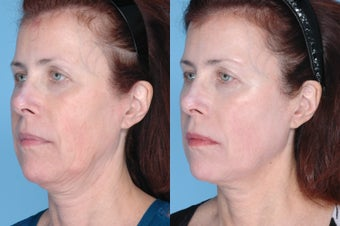 Ulthera Full Face and Neck after 378866