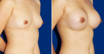 Breast Implants after 494488