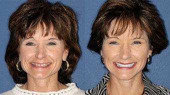 Smile Makeover before 324499